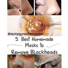 Repost of @doityourselfremedies|5 Best Homemade Masks to Remove Blackheads 1. Active mask with raw potato Potato has an astringent effect on the skin and intense purify it, by removing impurities. With its high content in starch, raw potato presents...