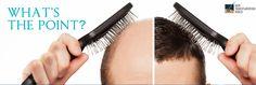 Best Doctor In Delhi- Hair Transplant Techniques