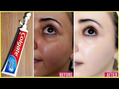 Hello Every Body My Video Show About: Traditional Beauty Tips Apply Toothpaste on Your Skin and See Magical Result within 1 Hour ¦Amazing Toothpaste Beauty H. Beauty Tips For Glowing Skin, Health And Beauty Tips, Beauty Skin, Beauty Care, Good Skin Tips, Skin Care Tips, Vaseline For Face, Colgate Toothpaste, Beauty Makeover