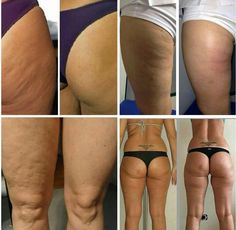Nu Skin, Galvanic Body Spa, Wrinkled Skin, Body Love, Tips Belleza, Transformation Body, Health And Beauty, Hair Beauty, Fit Bodies