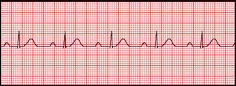 Finally! A good way to differentiate between the types of AV Heart Blocks -- for some reason, this clicked for me more than other explanations :)  #nursing, #acls, #ekg