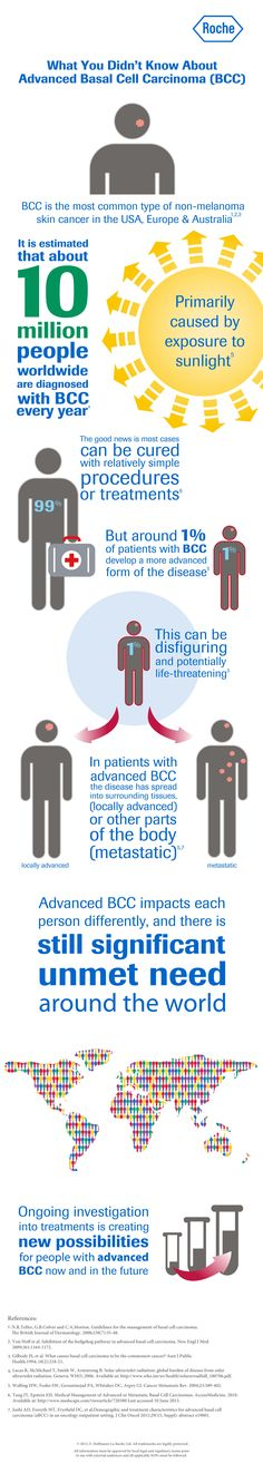 Advanced Basal Cell Carcinoma Infographic, originally uploaded by @Rochelle Weeks Weeks Weeks Pickering