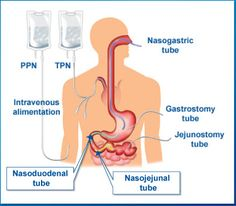 Parenteral.  Introducing medications, nutrition, or other substances into the body via a route that is not the GI tract.