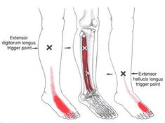 Anterior Ankle Pain - Primary Symptoms @ Extensor Digitorum Longus