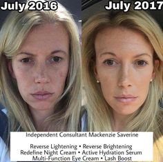 Results that make a visible difference.  Rodan and Fields Skincare.  Try it today. @shrptsn