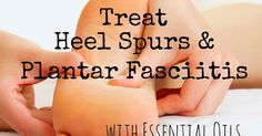 , Curly Loves Essential Oils: Treat Heel Spurs and Plantar Fasciitis with Essentia. , Curly Loves Essential Oils: Treat Heel Spurs and Plantar Fasciitis with Essential Oil. Young Living Oils, Young Living Essential Oils, Essential Oil Uses, Doterra Essential Oils, Feet Care, Reiki, Health And Beauty, Lotion, Herbalism