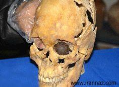 چشم مصنوعیبرای نخستین بار در شهر سوخته یك چشم مصنوعی متعلق به 4800 سال پیش كشف شد. این چشم مصنوعی متعلق به زنی 25 تا 30ساله بوده که در یکی از گور های شهر سوخته مدفون شده بوده است.جمجمه زن صاحب چشم مصنوعی شهر سوخته چشم مصنوعی روی جمجمه او دیده میشود.