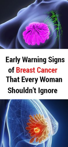 Early Warning Signs of Breast Cancer That Every Woman Shouldn't Ignore