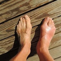 Natural Remedies For Gout – 6 Options You Can Try Today :http://www.diettalk.com/natural-remedies-for-gout/