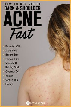 Tired Of Embarrassing Back Acne? Could You Use These Back Acne Treatment Tips? Back Acne Remedies, Natural Acne Remedies, Skin Care Remedies, Scar Remedies, Pimples Remedies, Cold Remedies, Herbal Remedies, Health Remedies, Back Acne Treatment