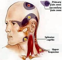 Headaches? Trigger Points are ischemic areas in the muscle. Apply deep pressure to get relief