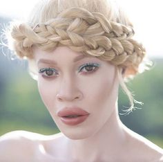 Diandra Forrest Is The Albino African American Model Who Proves Beauty Isn't Black And White Winnie Harlow, Jasmine Tookes, Albino African, Albino Model, African American Models, Leila, Magazine Mode, Most Beautiful People, Beautiful Ladies