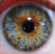 A really great example of psori; which are little freckle like spots in the eye.