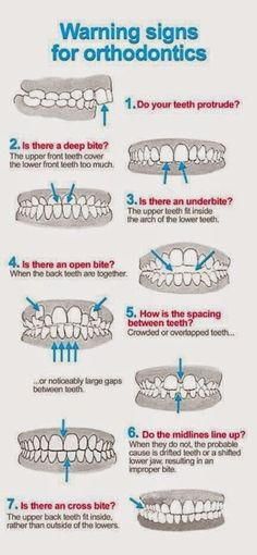 Do you know if you need orthodontics? Check out these warning signs. #calvertcountydentist #bracesaretemporary #beautifulsmile