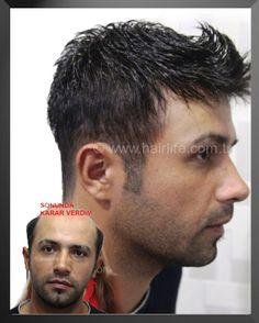 protezsac.com protez saç saç protezi protez saç kullananlar protez saç yorumları protez saç şikayetleri protez saç yaptırmak protez saç fiyatları hairlife protez saç ürünleri protez saç bakımı protez saç dökülmesi protez saç ücretsiz bilgi ve randevu 0212 291 03 41 protez saç ankara