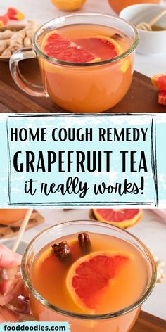Severe Cough Remedies, Toddler Cough Remedies, Homemade Cough Remedies, Home Remedy For Cough, Natural Sleep Remedies, Flu Remedies, Cold Home Remedies, Natural Health Remedies, Herbal Remedies