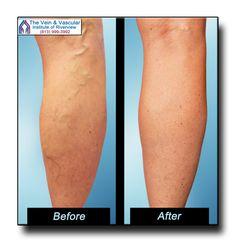 LaurusMedical - Hemorrhoids, Varicose Vein, Gastroenterology, Dermatology