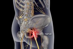 nerves of the lower body - muscle strain or sciatica? Also gives visual slide show to all low back pain.