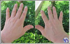 Viagens e Beleza: Eliminando manchas das mãos com luz pulsada!