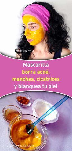 Mascarilla borra acné, manchas, cicatrices y blanquea tu piel - Natural Hair Mask, Natural Skin Care, Natural Hair Styles, Natural Beauty, Beauty Care, Diy Beauty, Beauty Skin, Beauty Ideas, Face Beauty