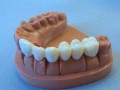3D Printed Teeth.