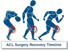 ACL Reconstruction Recovery – And Some Tips For Dealing With Post-Surgery Life Acl Knee, Knee Injury, Knee Pain, Acl Tear Recovery, Acl Surgery Recovery, Anterior Cruciate Ligament, Knee Osteoarthritis, Meniscus Surgery, Acl Rehab