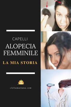 Alopecia Androgenetica Femminile: Caduta, Diradamento e Perdita Capelli Nelle Donne: La Mia Storia! - Clelia Mattana Stress, Psychological Stress