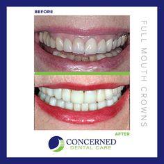 #beforeandafter #dental treatments #smile #teeth