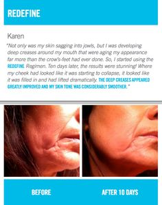 Redefine before and after. By Rodan and Fields for the Appearance of Wrinkles, Pores and Loss of Firmness.  https://apriltapp.myrandf.biz/