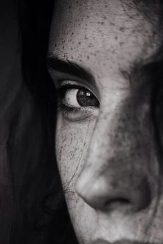 Freckles-Pecas