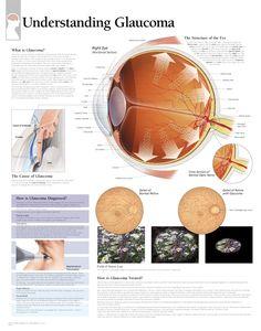 understanding glaucoma  poster