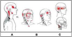Los dolores de cabeza pueden ser provocados por una lesión en el cuello. Estos son causados ??frecuentemente por una disfunción articular o muscular en el cuell