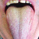 Jazyk – co vše nám může říci o našem zdraví?   Rehabilitace.info Stav