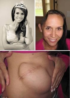 The former beauty queen who had her skull temporally attached to her stomach for six weeks after a near-fatal fishing accident. Surgeons removed the rear quarter of Jamie Hilton's skull and placed it in her abdomen, which enabled the bone to remain sterile and nourished while brain swelling from a head injury subsided.   Read more at http://www.oddee.com/item_98370.aspx#6bvzKxeZWW8gAwQ6.99