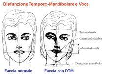 Disfunzione Temporo-Mandibolare