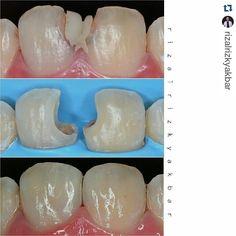 #Repost #follow @rizalrizkyakbar with @repostapp  Direct composite 11 21 Z350xt dentin a3 enamel a2 translusen Polishing enhance soflex diacomp eve #directcomposite #compositerestoration #compositefilling #dentist #odontologia #dentistry #dentalanatomy #dentalphotography #directrestoration #biomimetic #rubberdam #rubberdamology #southeast #asia #dental #report #seadr by southeastasiadentalreport Our General Dentistry Page: http://www.myimagedental.com/services/general-dentistry/ Google My…