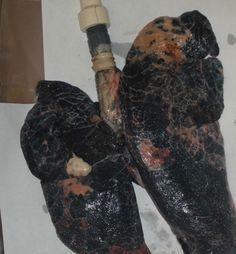 Here's ur motivation to quit smoking. We removed this from a man that died @ age 40 prematurely from lung cancer.