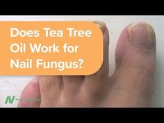 Tea tree essential oil is pitted against the antifungal cream lotrimin for the treatment of fungal nail infection, but what about treating the underlying cause?