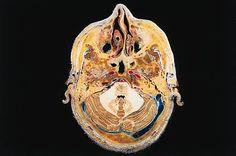 Coupe transversale du cerveau