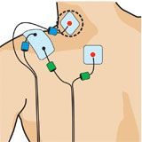 Trapezius-Tens unit electrode placement