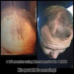 Do you have thinning hair? This stuff is amazing! clinical studies prove new hair growth.