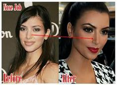 kim kardashian before and after surgery - Google Search