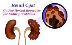 Renal Cyst – Go For Herbal Remedies for Kidney Problems  https://goo.gl/DQE42i  #renalcyst #herbalmedicines #herbalremedies #kidney #kidneyproblems