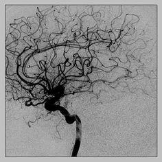 Cerebral angiography, Ana J. João, Alberto M. Anatomy Art, Human Anatomy, Inspiration Art, Art Inspo, Medical Illustration, Illustration Art, Brain Art, Dark Photography, Human Body