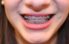 Girls With Braces - Customizing Your Braces - Cool And Colorful Designs For Girls With Braces