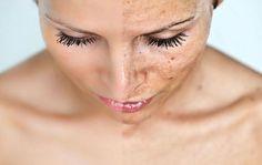 Un ingrédient de votre cuisine qui nettoie et blanchit toutes les taches de votre peau