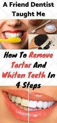 Health Advisor : A Friend Dentist Taught Me How To Remove Tartar And White. Daily Health Advisor : A Friend Dentist Taught Me How To Remove Tartar And White. Retired Chinese Dentist Secret Formula This Mouthwash Removes Plaque From Teeth In 2 Minutes Oral Health, Dental Health, Dental Care, Health Care, Dental Implant Surgery, Oral Surgery, Remedies For Tooth Ache, Heal Cavities, Receding Gums