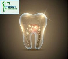Pioneer Dental Centre provide the best dental services in Yonge Eglinton Subway to your dental probl Tooth Extraction Aftercare, Tooth Extraction Healing, Teeth Implants, Dental Implants, Tooth Powder, Dental Crowns, Best Dentist, Dental Problems, Dental Surgery