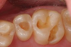 HOW TO HEAL A CAVITY NATURALLY WITHOUT DRILLING OR FILLING