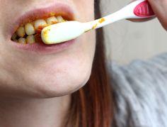 Sbiancare i denti con la curcuma